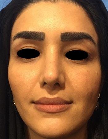 گالری جراحی زیبایی مجدد بینی