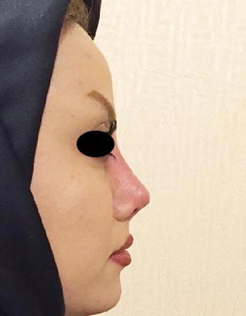 جراحی مجدد و ثانویه بینی