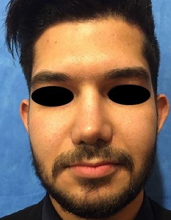 نمونه کار جراحی بینی گوشتی