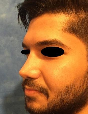نمونه کار جراحی بینی گوشتی آقایان