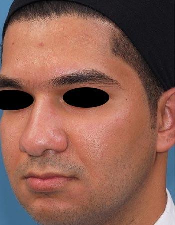 تصویر نمونه کار جراحی بینی گوشتی