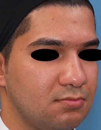نمونه کار بعد از عمل جراحی بینی گوشتی