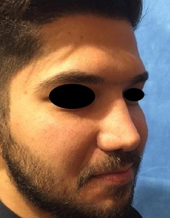 نیمرخ نمونه کار جراحی بینی گوشتی