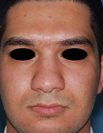 نمونه کار قبل عمل جراحی بینی گوشتی