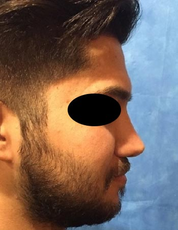 عکس نمونه کار جراحی بینی گوشتی