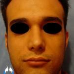 نمونه کار جراحی بینی معمولی آقایان
