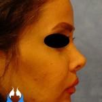 گالری جراحی بینی معمولی