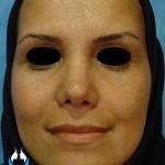 جراحی بینی معمولی با پوست متوسط