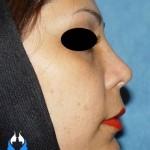 تصویر جراحی بینی معمولی