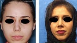 نشانه های جراحی زیبایی بینی