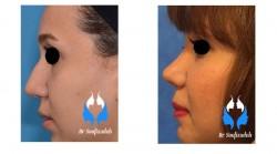 عوارض ظاهری جراحی زیبایی بینی