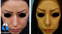 عوارض ظاهری و اثرات جراحی بینی