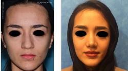 جراحی زیبایی بینی گوشتی بانوان
