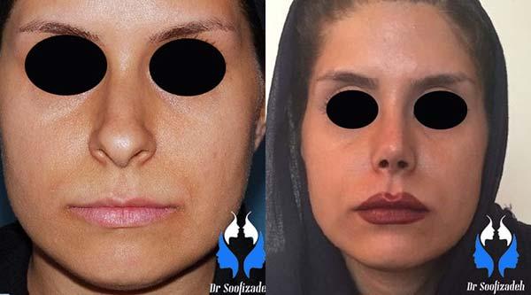 جراحی افتادگی بینی استخوانی