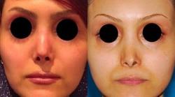 نیاز به جراحی زیبایی بینی ثانویه