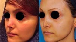 جراحی زیبایی بینی ثانویه چیست؟