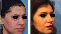 نیم رخ جراحی زیبایی بینی گوشتی