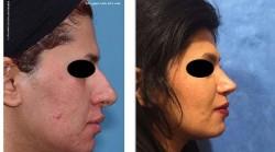 رضایت بیمار از جراحی زیبایی بینی گوشتی