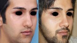 انواع جراحی بینی در مردان