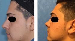 آشنایی با انواع جراحی بینی گوشتی در مردان