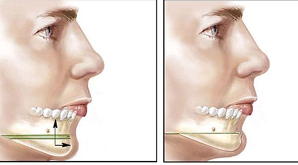 استفاده از پروتز در جراحی زیبایی چانه