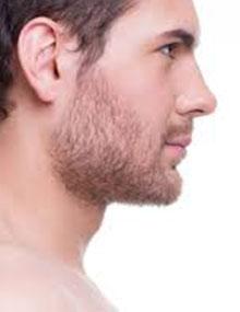 آشنایی با جراحی بینی مردان