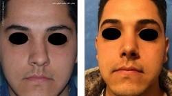 آشنایی با جراحی بینی کج در مردان