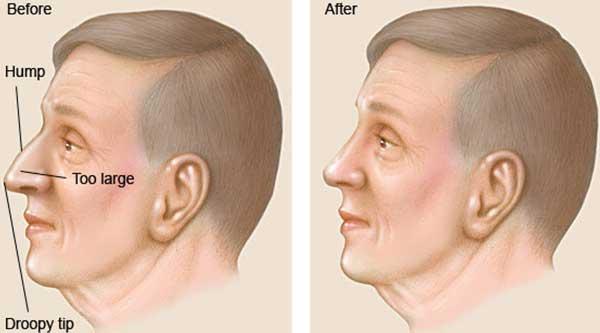 آشنایی با انواع جراحی بینی در مردان
