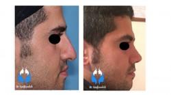 مراقبت های پس از جراحی زیبایی بینی