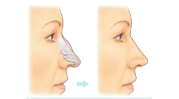ویژگی جراحی بینی استخوانی