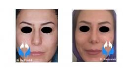 نتایج جراحی زیبای بینی