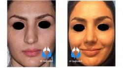 دلایل جراحی زیبایی بینی رینوپلاستی