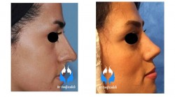 دلایل جراحی زیبایی بینی رینوپلاستی کج