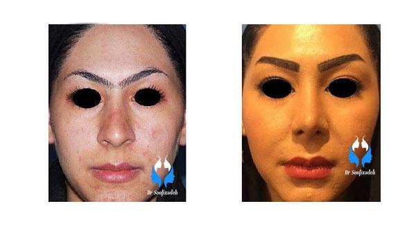 هزینه جراحی زیبایی بینی رینوپلاستی