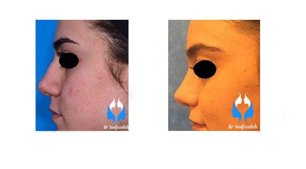 عوارض عمل زیبایی بینی