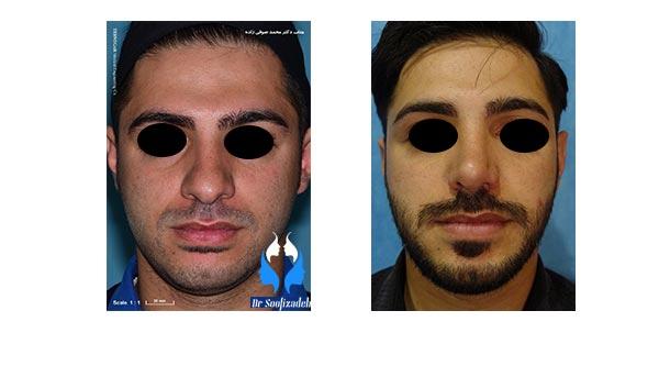 روش جراحی زیبایی بینی گوشتی