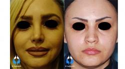 جراحی بینی طبیعی بانوان