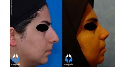 عمل جراحی بینی طبیعی بانوان
