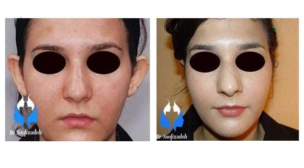 جراحی زیبایی صورت در ناحیه گوش