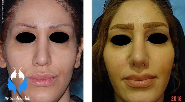 جراحی زیبایی صورت در ناحیه گونه