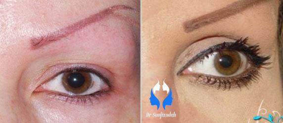 جراحی زیبایی صورت در ناحیه پلک