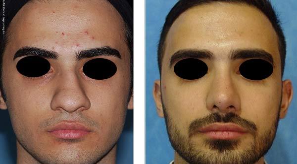 انواع جراحی زیبایی بینی