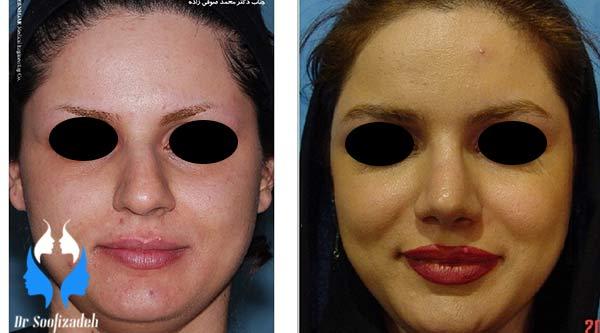 انتخاب جراح برای عمل زیبایی بینی