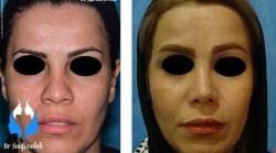 جراحی زیبایی بینی صورت