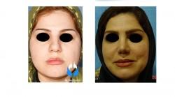 جراحی زیبایی صورت در ناحیه بینی