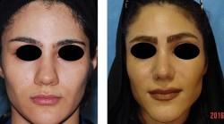 جراحی زیبای بینی رینوپلاستی گوشتی