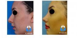 جراحی بینی ورزشکاران